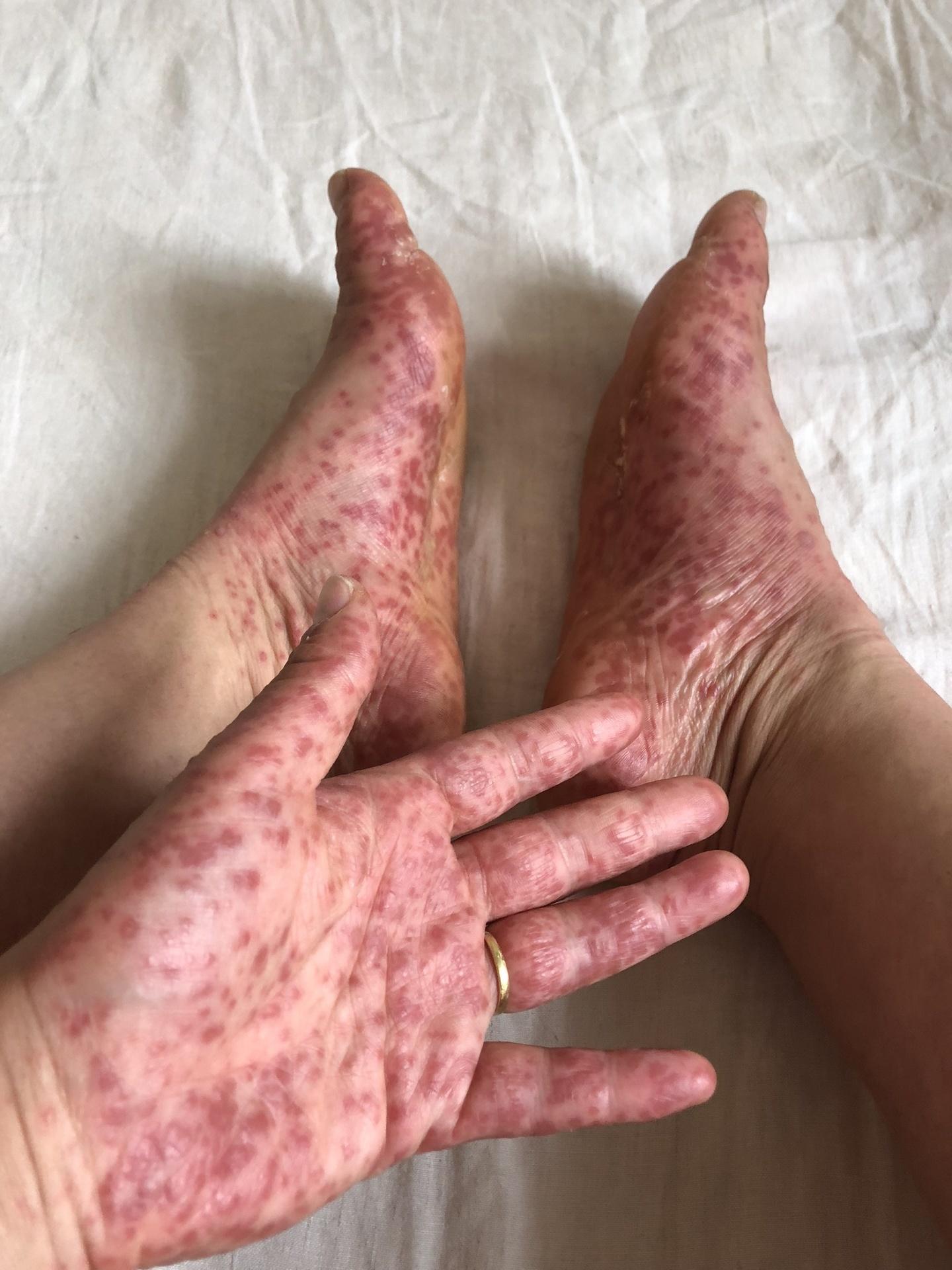 の 裏 痒い 手のひら 足